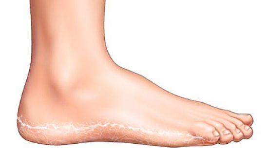 vörös foltok a lábakon hagyományos orvoslás kenőcs pikkelysömör bőr sapka