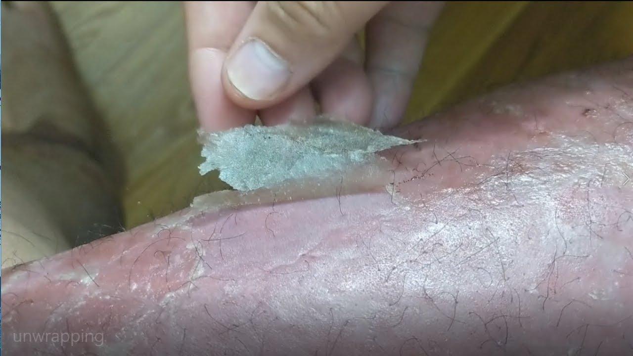 hagyomnyos kezelsek a br psoriasis