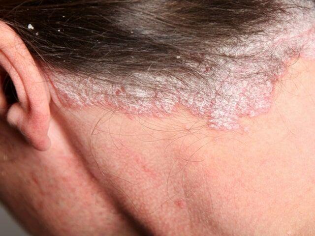 hogyan lehet eltávolítani a vörös foltokat egy érméről pikkelysömör kezelése a fürdőben