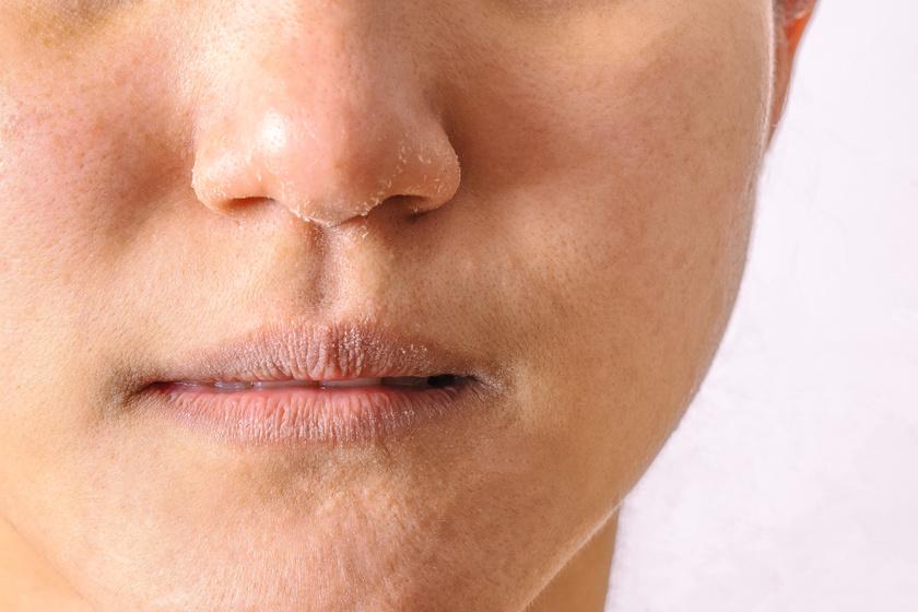 vörös foltok pikkelyesek az orr körül a szem alatt egy vörös folt hámlik le, ami van