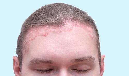 hogyan kell kezelni a pikkelysömör fülét