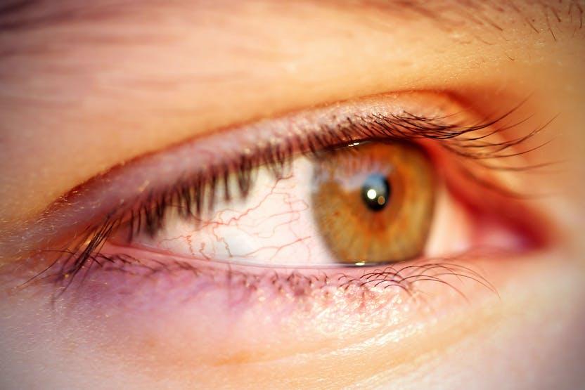 Piros folt a szem fehérjén: okok, kezelés - Gyulladás November