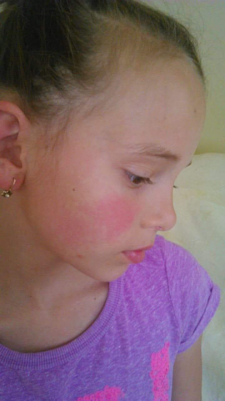 mi okozza a vörös foltok megjelenését az arcon vörös szélű és viszkető folt jelent meg a bőrön
