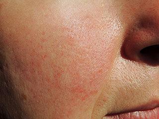 növekvő vörös foltok az arcon