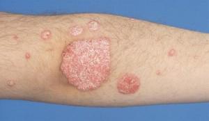 Atópiás dermatitisz