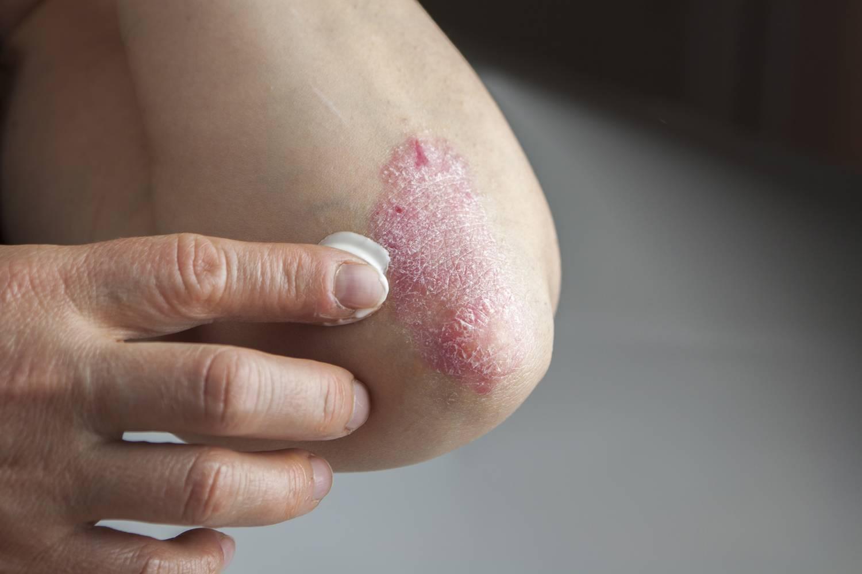 pikkelysömör kezelési eljárás lotion clean body from psoriasis reviews