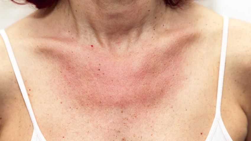 piros foltok a nyakon nagyon viszketnek