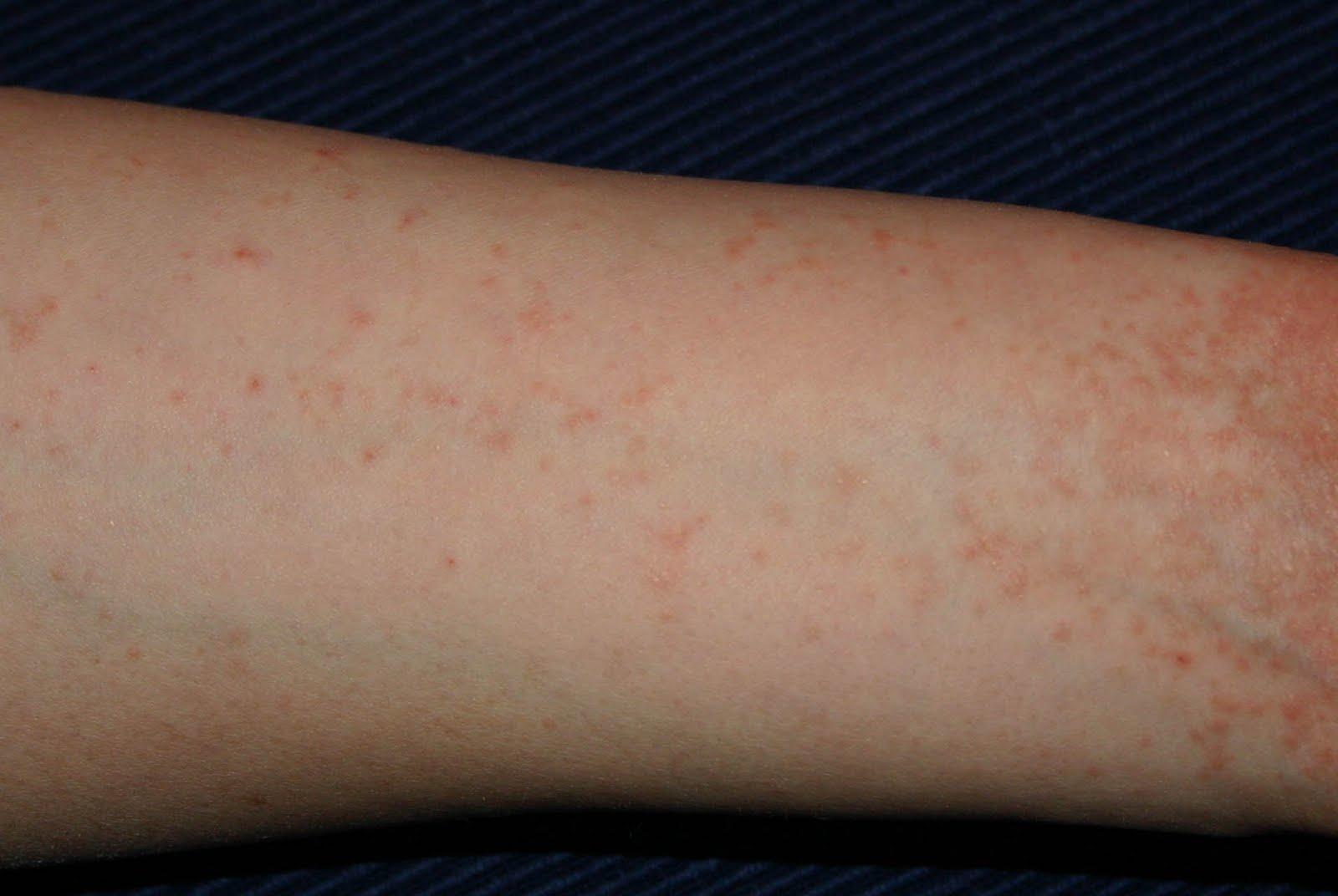 piros kis foltok a lábakon fotó milyen kezektől viszket a bőrön vörös foltok viszketés kezelés
