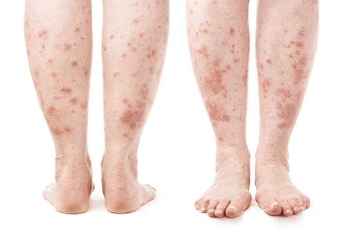 pontosan meghatározza a lábakon a vörös foltokat