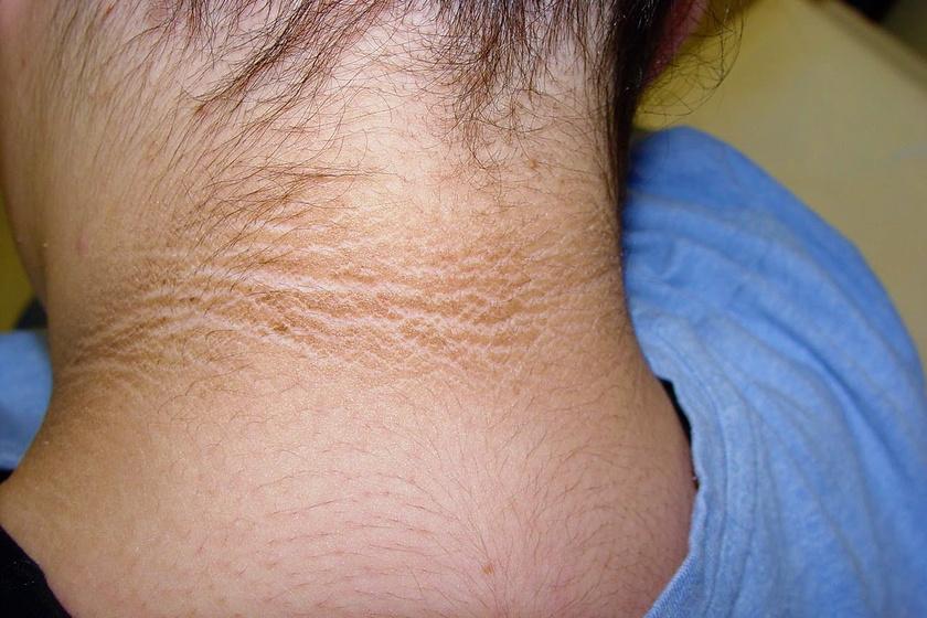 Vörös foltok a térdeken: okok és kezelés