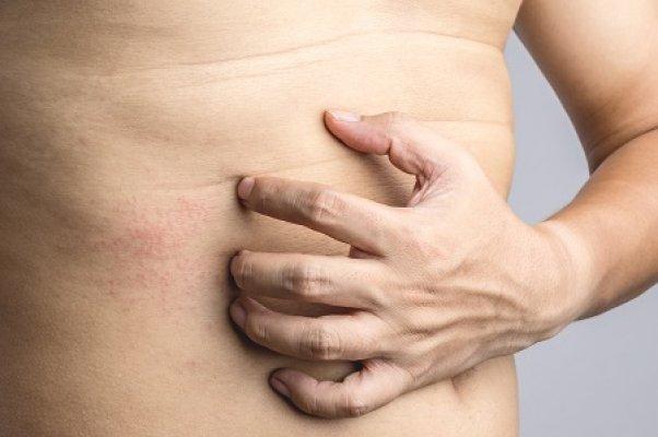darsonval pikkelysömör kezelése