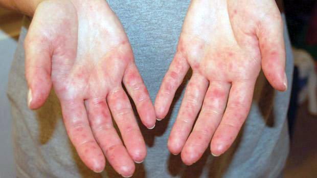 vörös foltok a talpon és a tenyéren darsonval pikkelysömör kezelésére