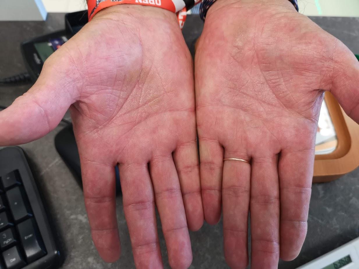 vörös foltok viszketnek és duzzadnak piros ovális foltok a kezeken